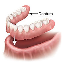 Removable complete dentures are a denture option