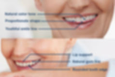 Standard dentures can fit comfortable and get you through with eating your food, however, precision complete dentures give your denture wings. By using precise measurements and applying knowledge of dental anatomy you can regain that youthful smile.
