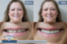 Denturist in Midland area offering complete denture and partial denture services. Immediate dentures may be an option to restore your smile and confidence. Dental cleaning in Midland area available by a registered dental hygienist in Coldwater Ontario.