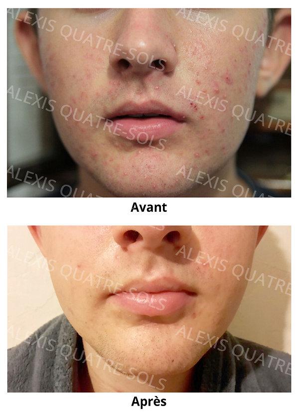 Alexis_acne.jpg