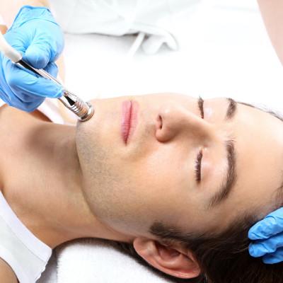 microdermabrasion treatment for men