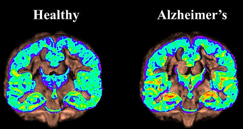 Brain Atlas for Alzheimer's Detection