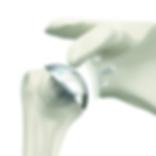 Simpliciti & Perform Shoulder Arthroplasty