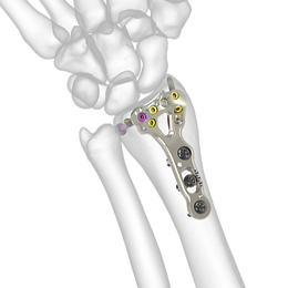 Acu-Loc 2 Wrist Plating System