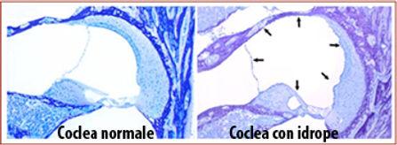 Coclea e idrope. Acufeni, vertigini, ipoacusia e sensazione di instabilità cura.