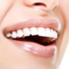 mooie smile cover