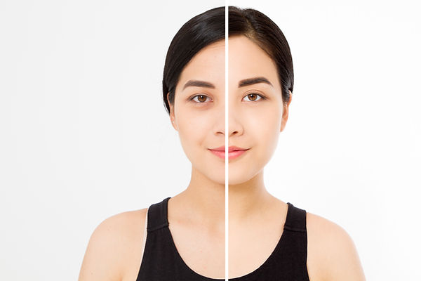 Closeup before after asian woman face. Before-after cosmetic procedures. Skin care wrinkle