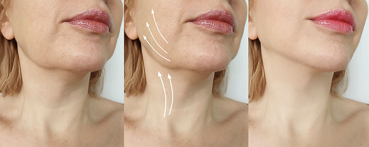 woman double chin before and after treatment.jpg