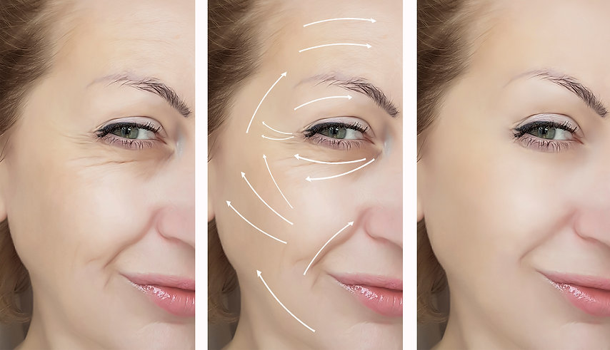 woman face wrinkles before and after procedures, arrow.jpg