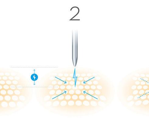 PB-FIBROBLAST-Plasmareaktion-01.jpeg