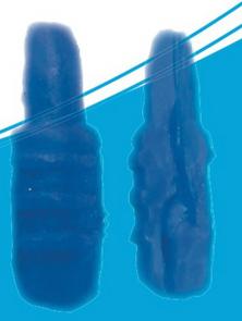 Complete Cervix with cervical fold