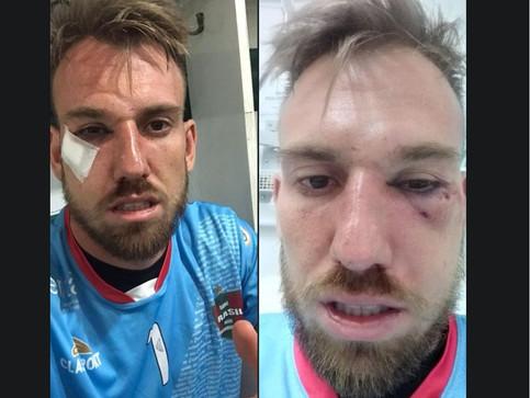 Goleiro do Brasil-Far é levado ao hospital com fraturas no rosto
