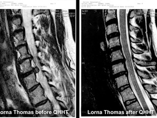Another QHHT Miracle: Lorna's Healed Herniated Discs