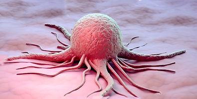 Раковая опухоль.jpg