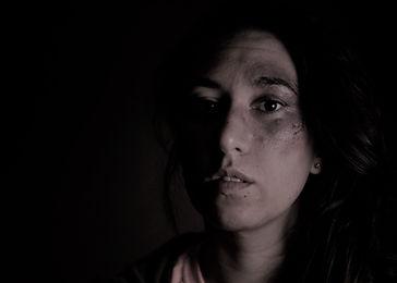 Woman Black Eye2.jpg