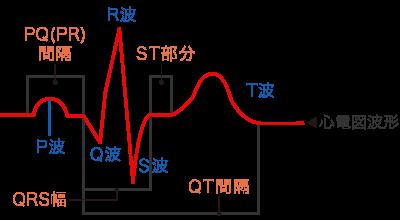 心臓血管研究所付属病院 心電図波形