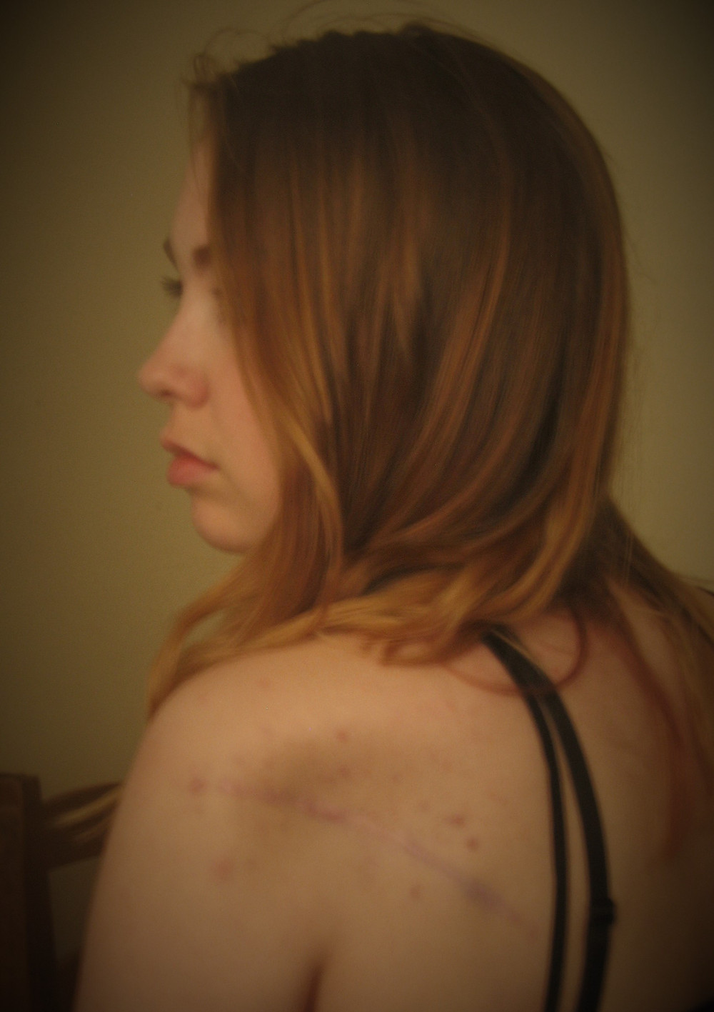 One of the braver things I have done - the first picture of my scar.