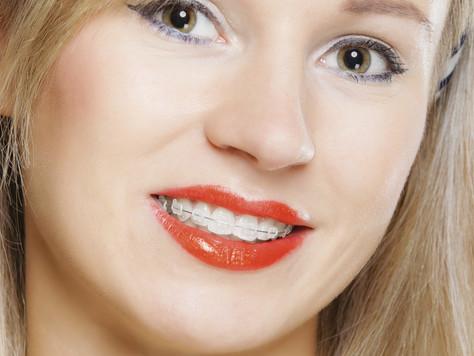 Aparelhos Dentários Estéticos (Cerâmicos)