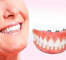 750x410-do-que-e-feita-uma-protese-denta