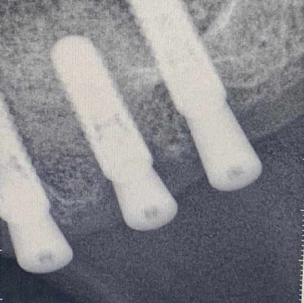 Straumann Implants