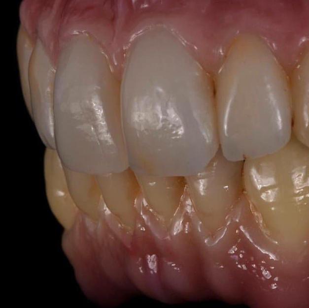 Straumann Implant supported Denture