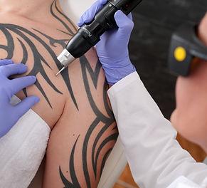 laser Tattoo removal Tel Aviv