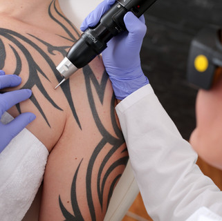 Tatuajes: Sí, puedes borrarlos