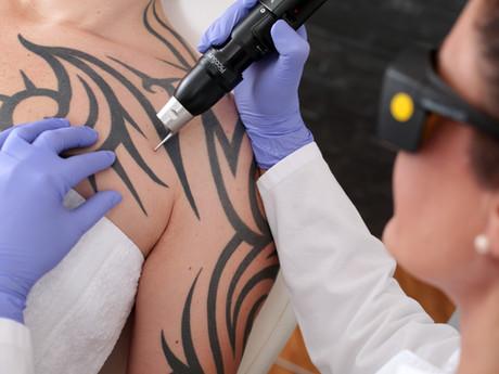 Como remover a minha Tatuagem?