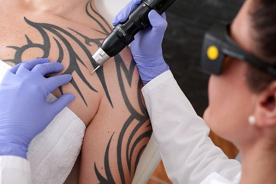 rimozione laser del tatuaggio