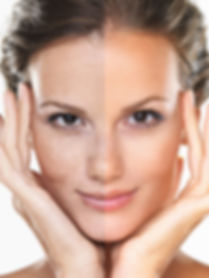 face pigmentation