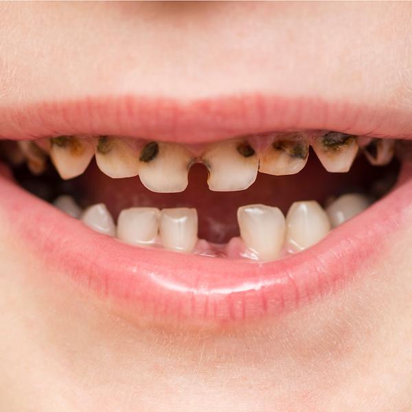 Dental Teeth Decay Cavities
