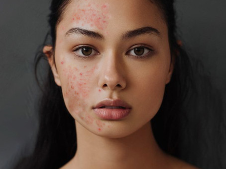 Why Only Half Treat Your Acne?