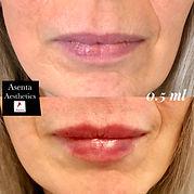 lips2.jpeg
