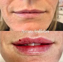 lips6.jpg