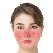 玫瑰痤瘡-酒渣鼻-炎症上眼