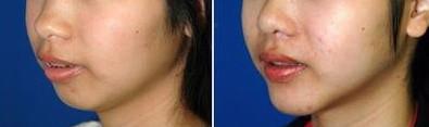 透明質酸改善下巴