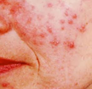 黃天厚-玫瑰痤瘡-感染化膿