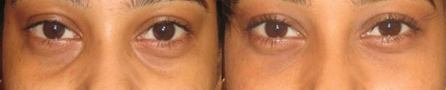 透明質酸改善幼紋-減眼袋