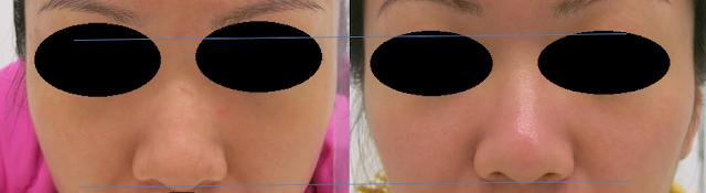 透明質酸改善鼻樑