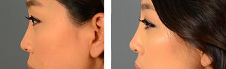 透明質酸改善鼻尖