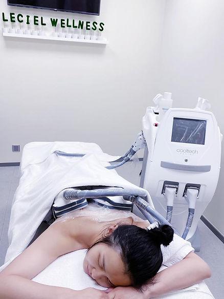 黃穎君-CoolTech-冷凍溶脂-2