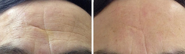 透明質酸改善前額皺紋