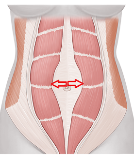 腹直肌分離-筋膜破壞-腹部鬆弛