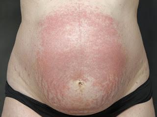 妊娠蕁麻疹的模樣