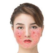 玫瑰痤瘡-丘疹-發紅發熱