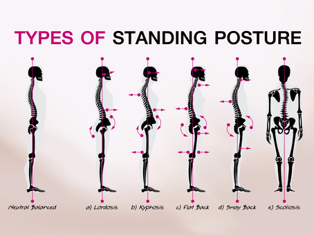 Posture: How Do You Measure Up?