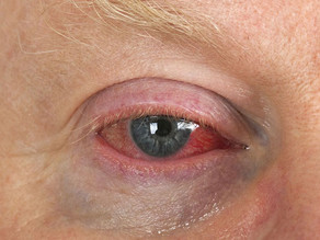 Ask the Expert: Why are my eyes dry, red and irritated?