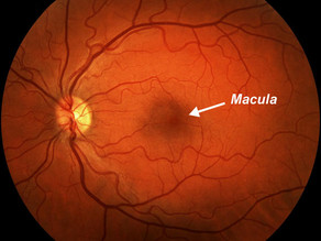 Ask the Expert: Can I prevent macular degeneration?