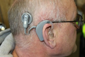 Most cochlear implants are behind the ear, with a coil that is attached to a magnet that has been surgically implanted in the skin behind the ear. Contributed photo