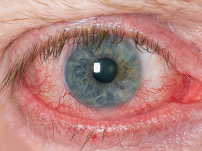 Ask the Expert: What can be done about dry eyes?